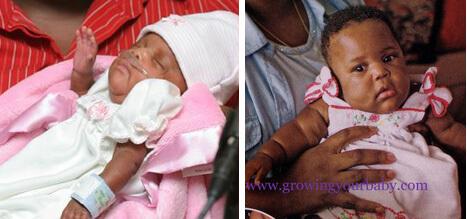 Самый маленький в мире недоношенный новорожденный ребенок. Эмилия Тейлор.