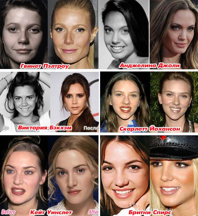 Ринопластика у звезд. Изменение формы и размера носа. Гвинет Пэлтроу, Анджелина Джоли, Виктория Бэкхэм, Кейт Уинслет, Бритни Спирс.